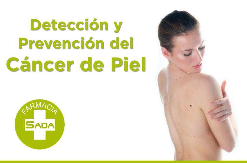 Detección y Prevención del Cáncer de Piel