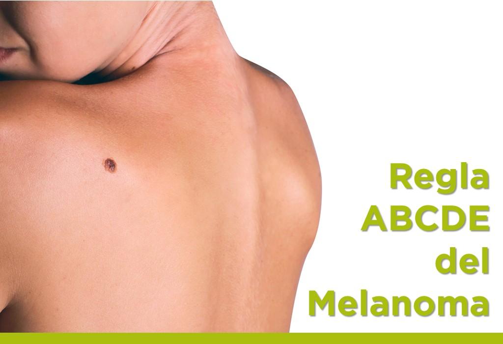 Regla ABCDE del Melanoma