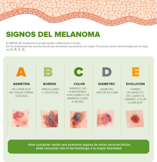 Signos-del-melanoma